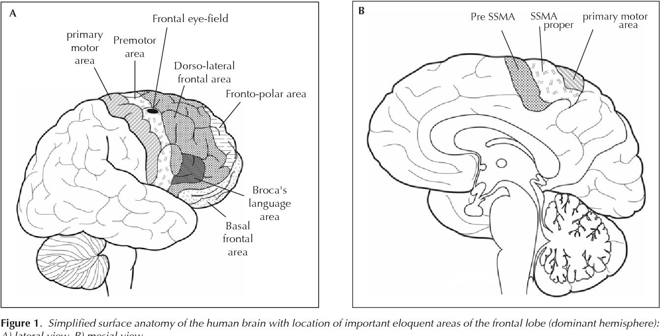 Figure 1 from Frontal lobe epilepsy. - Semantic Scholar