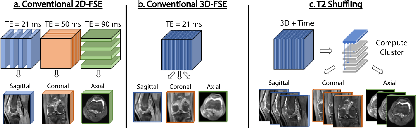 Figure 1 for Clinically Deployed Distributed Magnetic Resonance Imaging Reconstruction: Application to Pediatric Knee Imaging