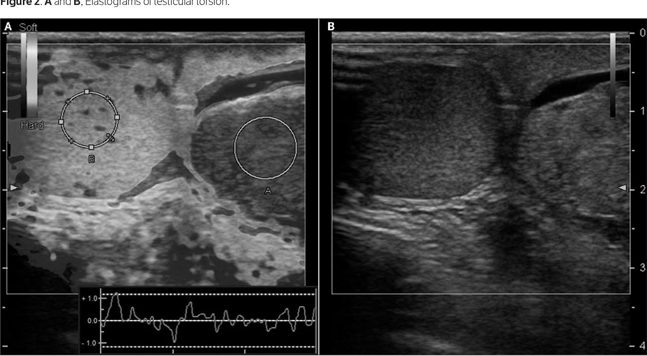 Application of Quasistatic Ultrasound Elastography for