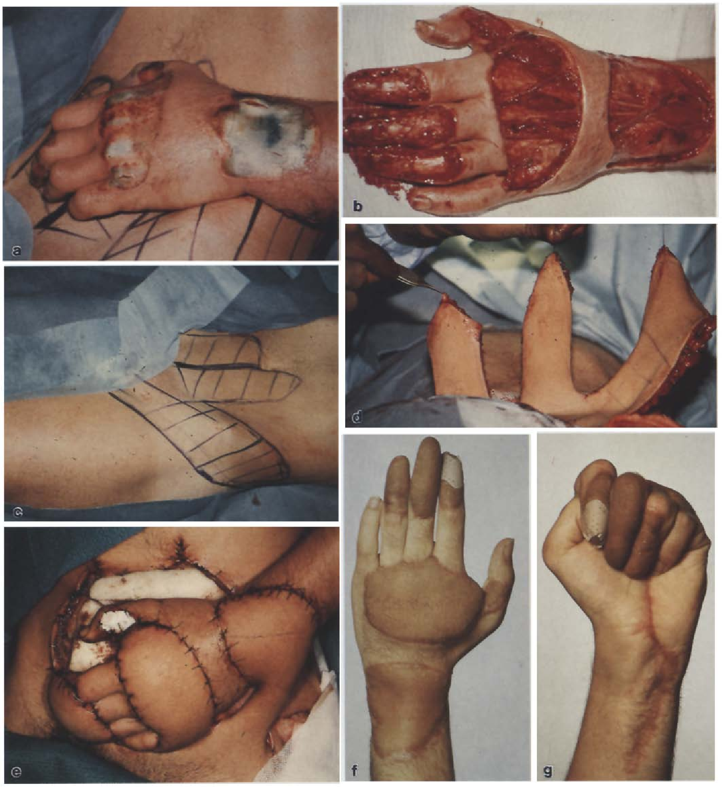 Fig. 1. a 21-year-old printer who sustained a crush injury on the dorsum of his left wrist, mid-hand and long fingers, b After debridement, bone and extensor tendon apparatus were exposed, c, d An ipsilateral groin and two hypogastric flaps were planned for soft tissue reconstruction, e After insetting the flaps, the remaining abdominal skin defect was covered by a meshed skin graft, f, g Functional final result after separation of the syndactylies, trimming of the flap and scar revision