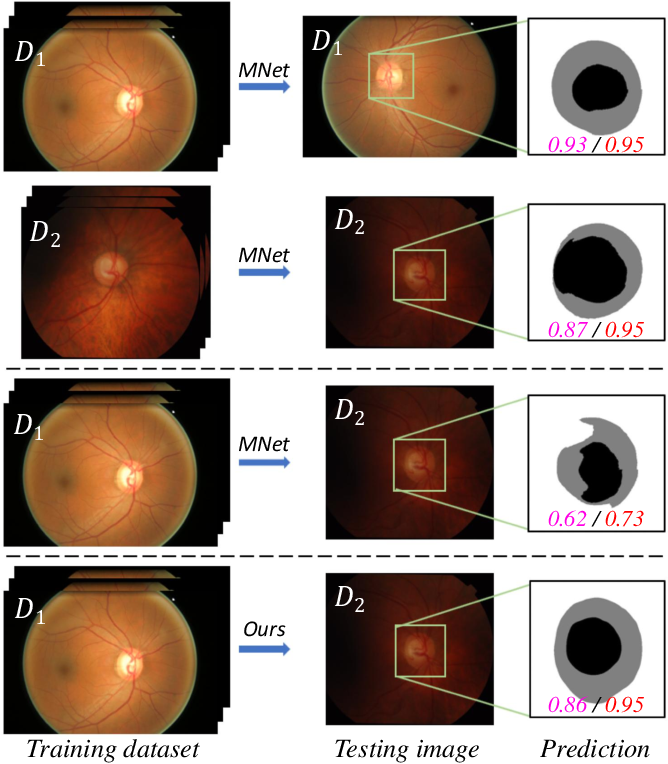 Figure 1 for Patch-based Output Space Adversarial Learning for Joint Optic Disc and Cup Segmentation
