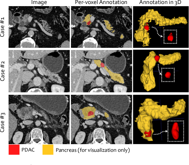 Figure 1 for Learning Inductive Attention Guidance for Partially Supervised Pancreatic Ductal Adenocarcinoma Prediction