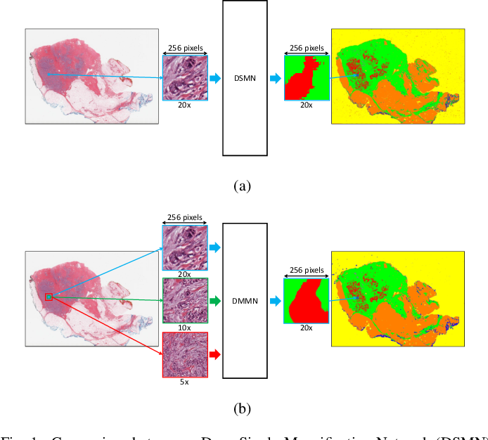 Figure 1 for Deep Multi-Magnification Networks for Multi-Class Breast Cancer Image Segmentation
