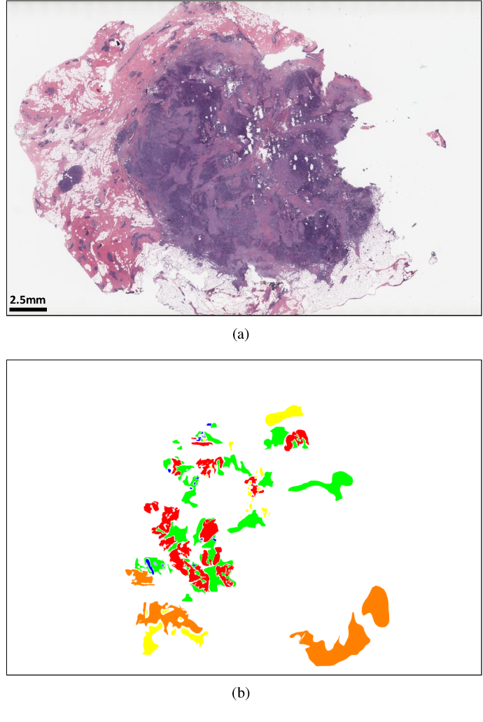 Figure 3 for Deep Multi-Magnification Networks for Multi-Class Breast Cancer Image Segmentation