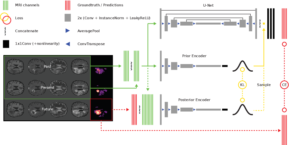 Figure 1 for Deep Probabilistic Modeling of Glioma Growth