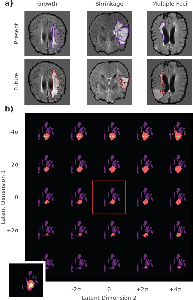 Figure 2 for Deep Probabilistic Modeling of Glioma Growth