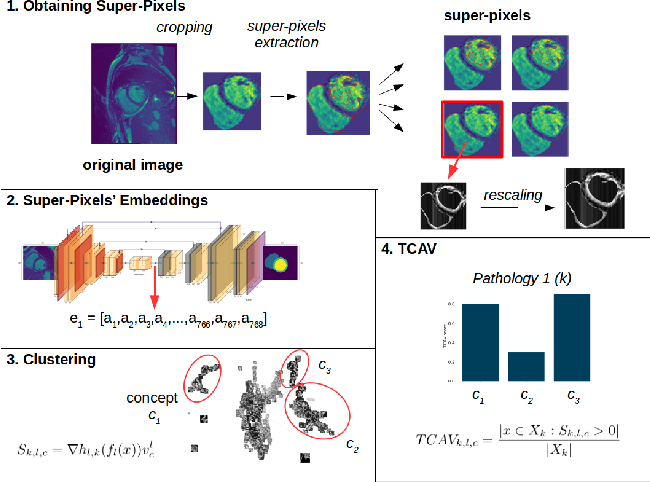Figure 3 for Interpretability of a Deep Learning Model in the Application of Cardiac MRI Segmentation with an ACDC Challenge Dataset