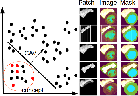 Figure 4 for Interpretability of a Deep Learning Model in the Application of Cardiac MRI Segmentation with an ACDC Challenge Dataset
