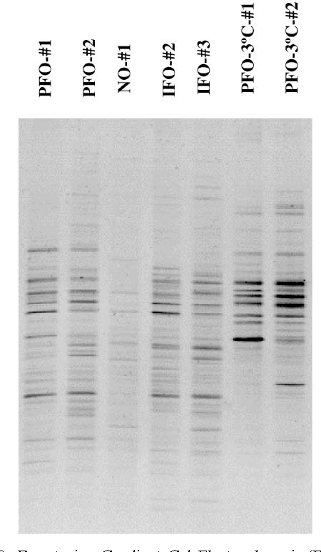 Fig. 8. Denaturing Gradient Gel Electrophoresis (DGGE) analysis of PCR amplified 16S-rDNA extracted from biofilter media.