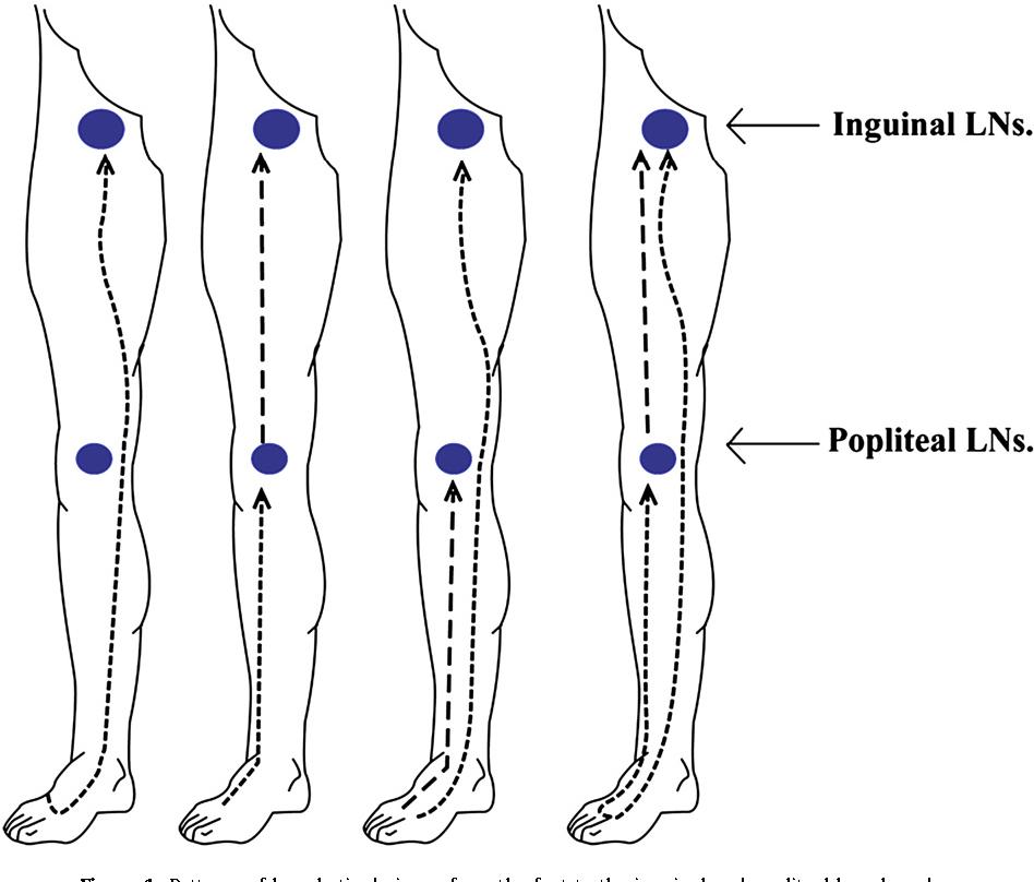 Metastasis To The Popliteal Lymph Nodes In Lower Extremity Melanoma