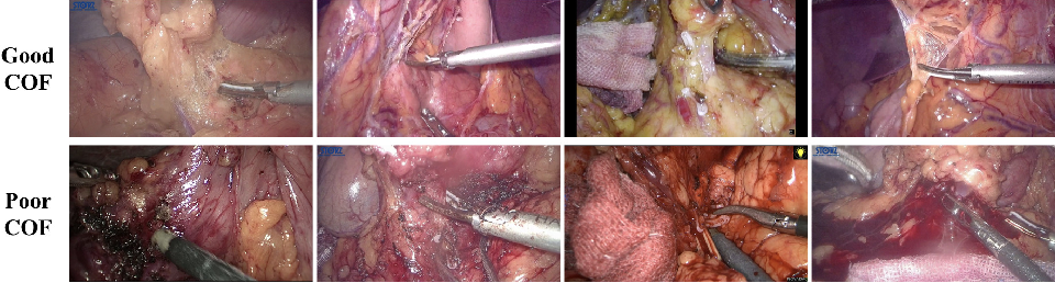 Figure 2 for Surgical Skill Assessment on In-Vivo Clinical Data via the Clearness of Operating Field
