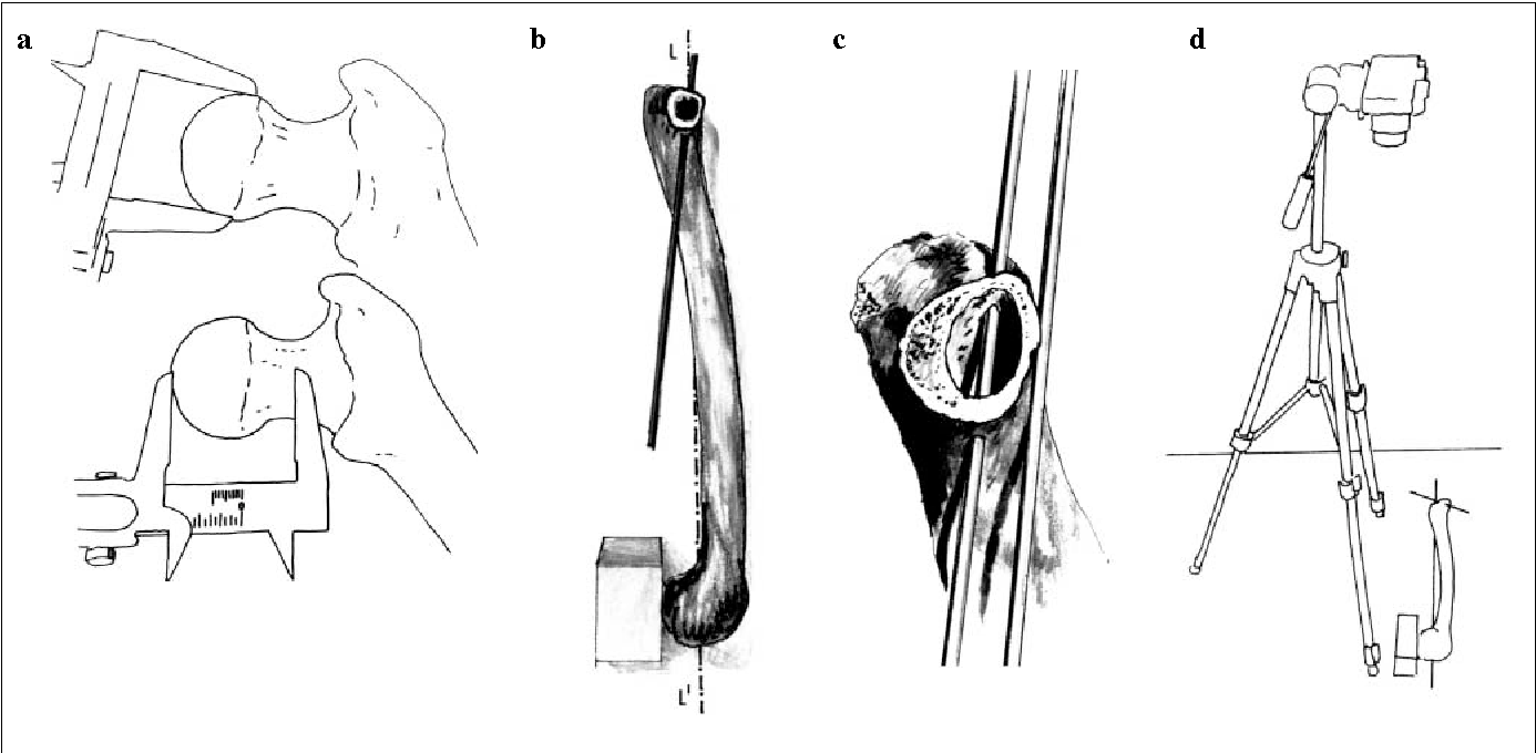 The anatomy of the femoral neck. Variability of the orientation of ...