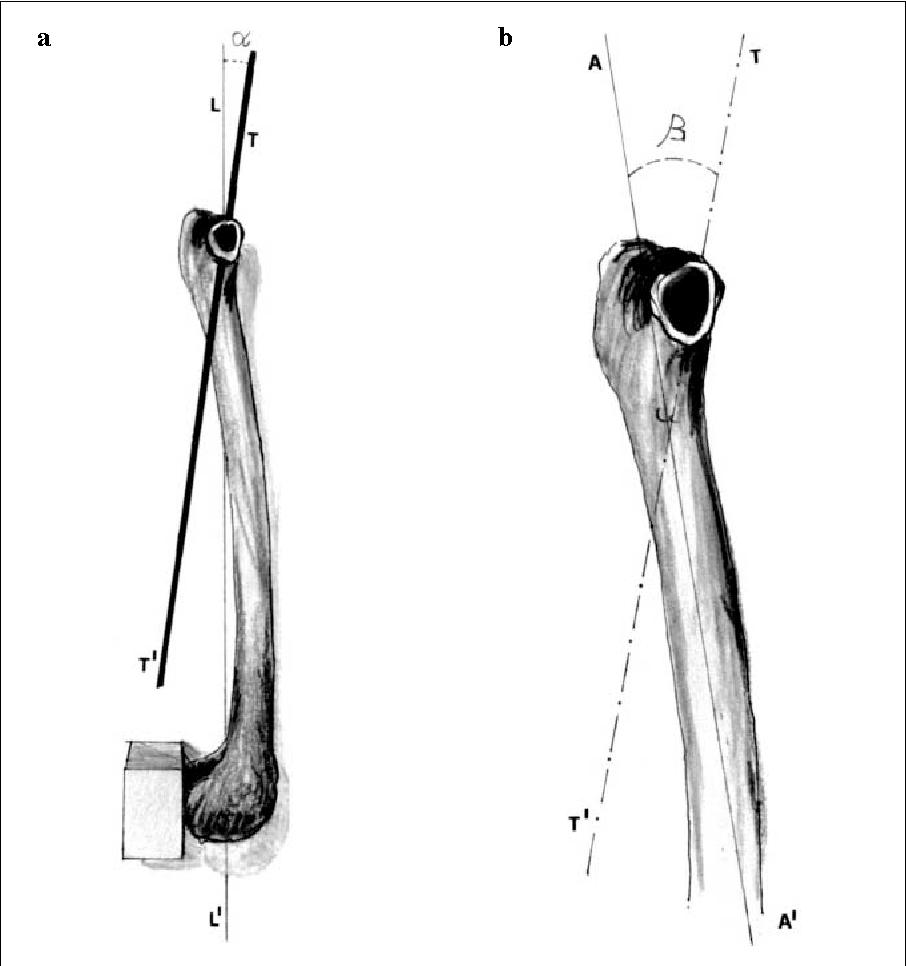 Figure 3 From The Anatomy Of The Femoral Neck Variability Of The