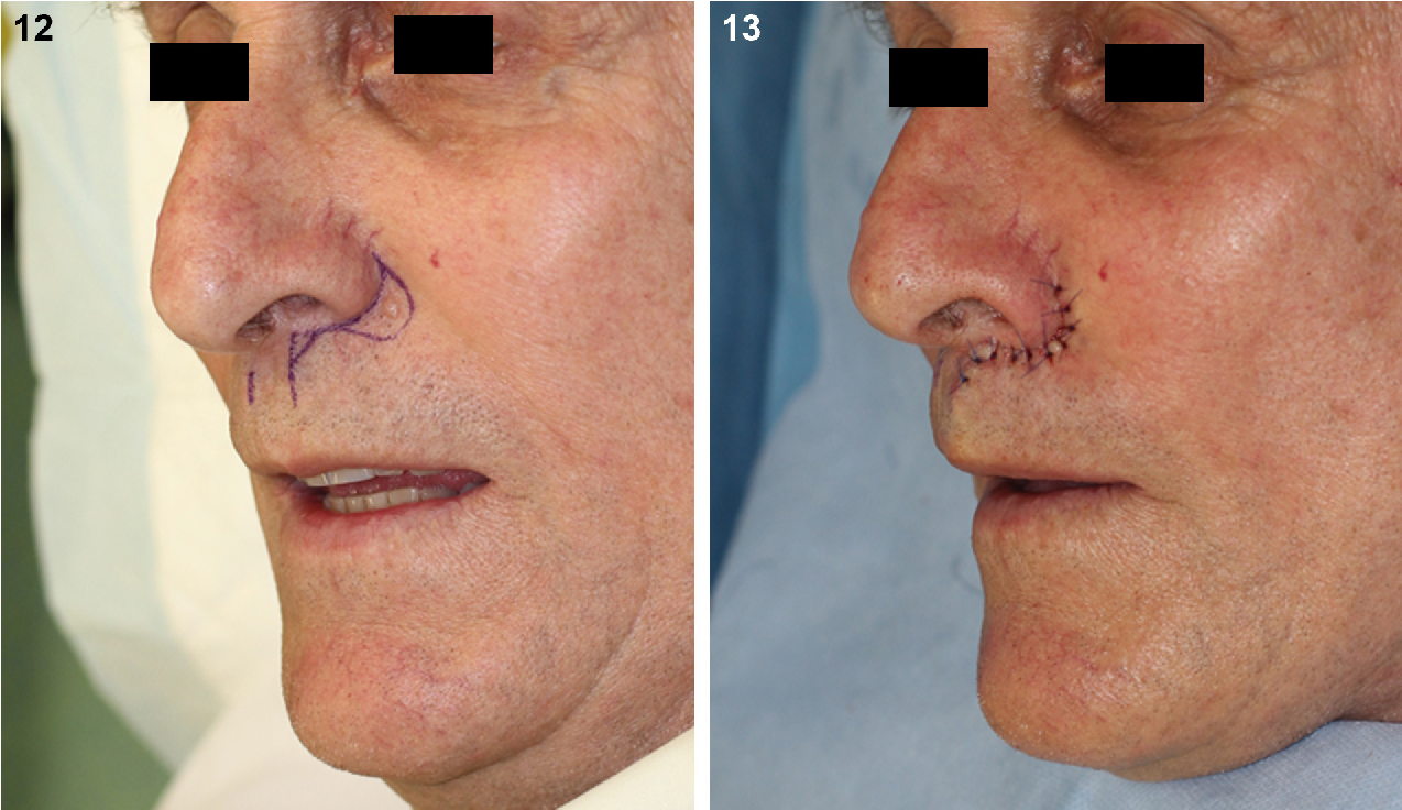 Figure 12 From Aesthetic Reconstructive Surgery Of The Lip
