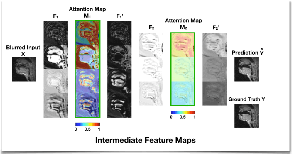 Figure 3 for Attention-gated convolutional neural networks for off-resonance correction of spiral real-time MRI