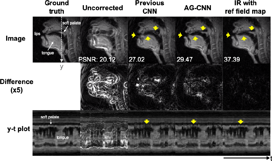 Figure 4 for Attention-gated convolutional neural networks for off-resonance correction of spiral real-time MRI