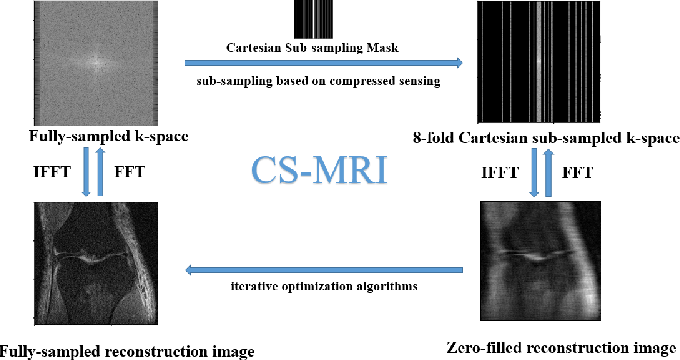 Figure 1 for Neural Architecture Search for Compressed Sensing Magnetic Resonance Image Reconstruction
