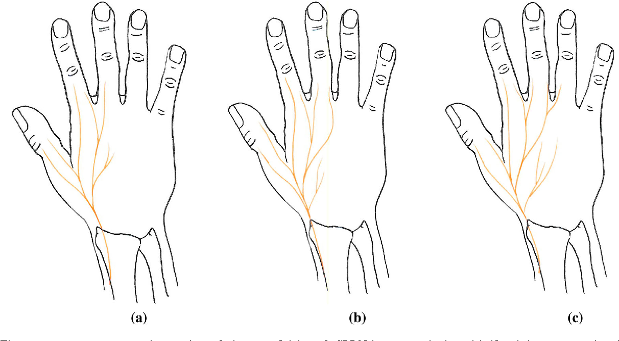 The sensory distribution in the dorsum of the hand: anatomical study ...