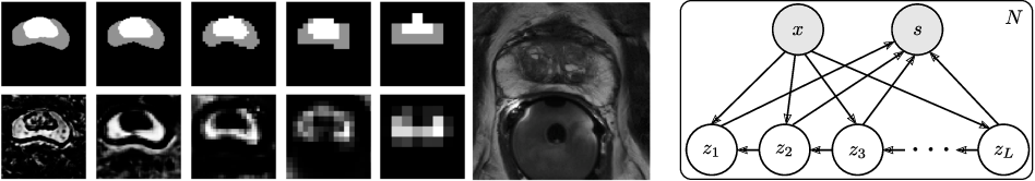 Figure 1 for PHiSeg: Capturing Uncertainty in Medical Image Segmentation