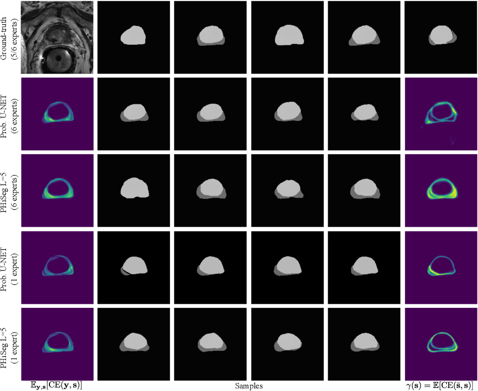 Figure 4 for PHiSeg: Capturing Uncertainty in Medical Image Segmentation