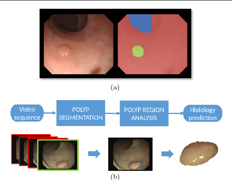 Figure 1 for A Benchmark for Endoluminal Scene Segmentation of Colonoscopy Images