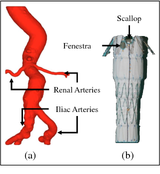 Figure 1 for 3D Path Planning from a Single 2D Fluoroscopic Image for Robot Assisted Fenestrated Endovascular Aortic Repair