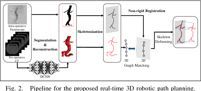 Figure 2 for 3D Path Planning from a Single 2D Fluoroscopic Image for Robot Assisted Fenestrated Endovascular Aortic Repair
