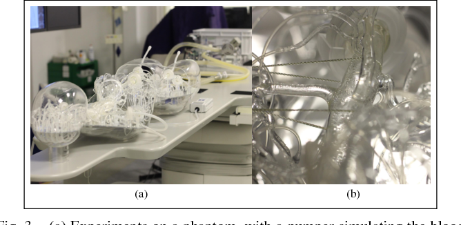 Figure 3 for 3D Path Planning from a Single 2D Fluoroscopic Image for Robot Assisted Fenestrated Endovascular Aortic Repair
