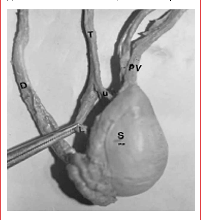 Human testicular arterial supply: gross anatomy, corrosion cast, and ...