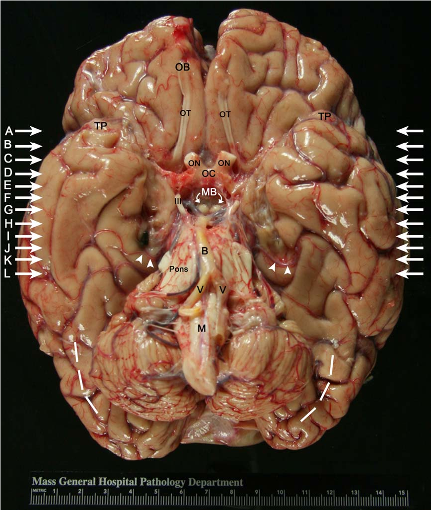 Figure 2 from H.M.\'s contributions to neuroscience: a review and ...