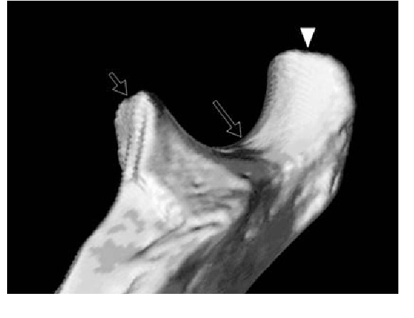 Figure 3 from Magnetic resonance imaging of the elbow. Part I ...