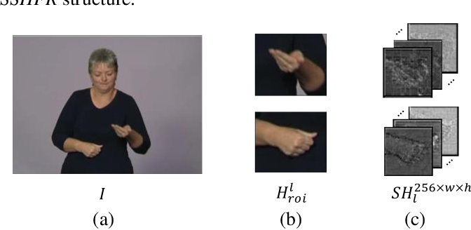 Figure 2 for Serial-parallel Multi-Scale Feature Fusion for Anatomy-Oriented Hand Joint Detection
