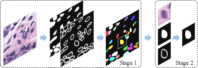 Figure 4 for Boundary-assisted Region Proposal Networks for Nucleus Segmentation
