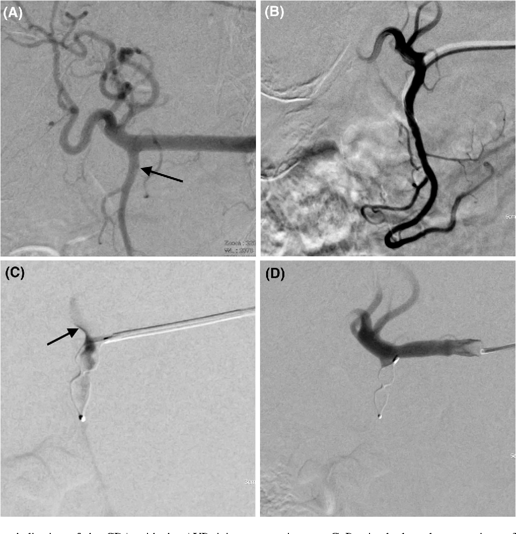 1 Protective Embolization Of The GDA With AVP 4 In A 79