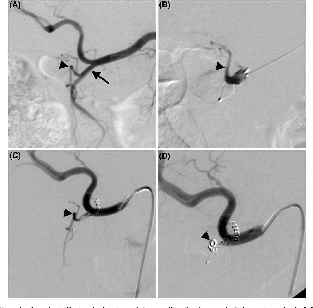 3 Residually Perfused Proximal Side Branch After Plug Embolization Of The GDA A