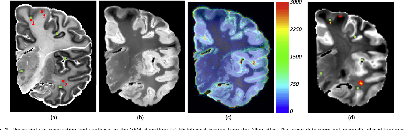 Figure 3 for Joint registration and synthesis using a probabilistic model for alignment of MRI and histological sections