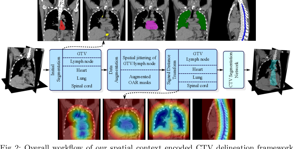 Figure 3 for Deep Esophageal Clinical Target Volume Delineation using Encoded 3D Spatial Context of Tumors, Lymph Nodes, and Organs At Risk