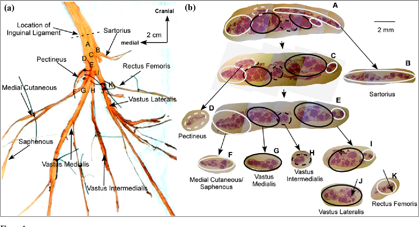 Fascicular Anatomy Of Human Femoral Nerve Implications For Neural