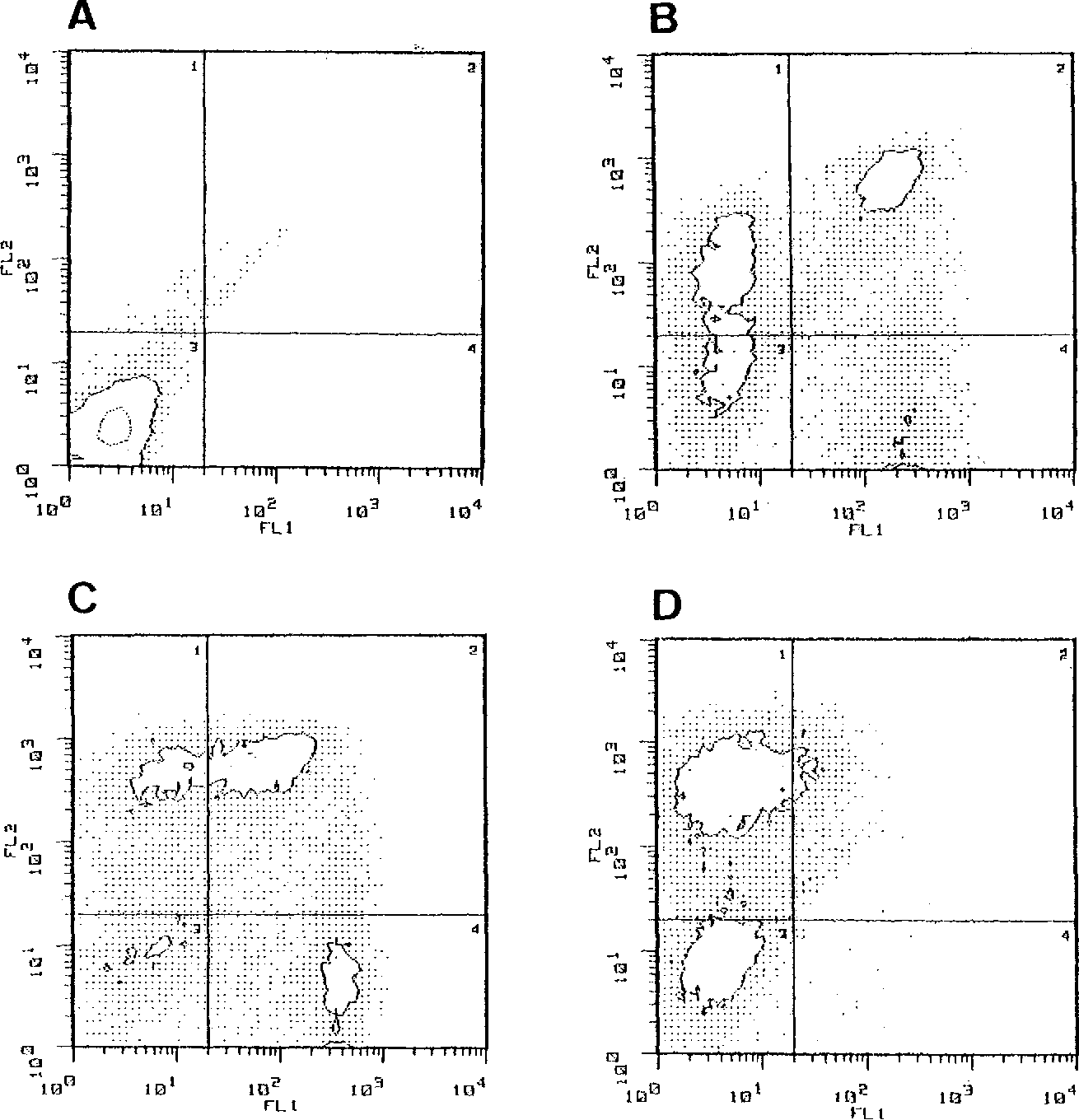 """Fig 1. Flow cytometric analysis of day 7 LAK cells from a single patient. (A) Histogram showing negative control staining with antimouse FlTC and antimouse phycoerythrin (PE). (B) Histogram showing FL1 FlTC anti-CD3 and FL2 PE anti-CD8. The CDEbrbM population coexpresses the CD3 receptor whereas the CD8* cells are largely CD3-. (C) Histogram showing FL1 FITC anti-CD8 and F U PE anti-Leu-19 (CD56). The CDBb'*' cells are largely Leu-19- whereas the CDe"""" cells coexpress the Leu-19 antigen. (D) Histogram showing FL1 FITC anti-CD16 and F U PE anti-Leu-19 (CD66). The Leu-19' cells are either CD16- or CD16d""""."""