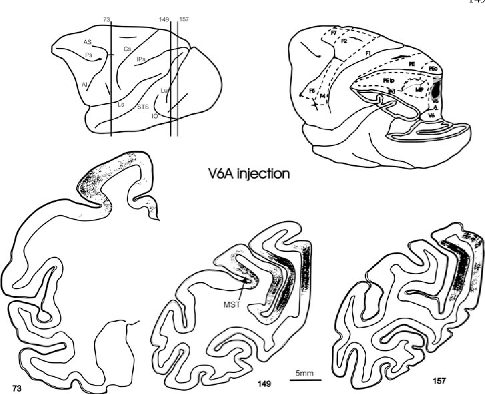 Two different streams form the dorsal visual system: anatomy and ...