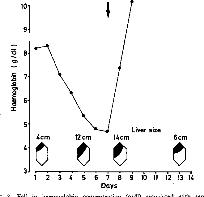 Figure 2 from Hepatic sequestration in sickle cell anaemia