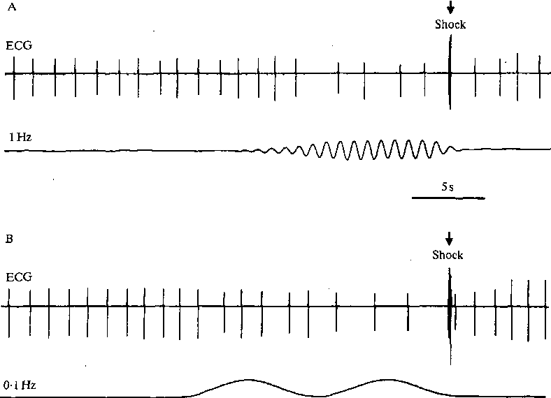 Figure 2 from Detection of infrasound by the Atlantic cod