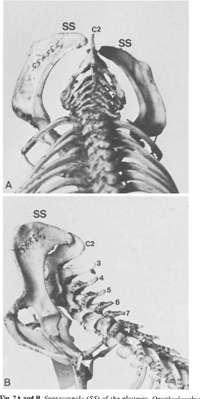 Figure 7 from Sprengel\'s deformity - Semantic Scholar