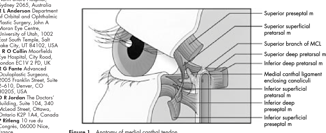 Figure 1 From Repair Of The Lax Medial Canthal Tendon Semantic