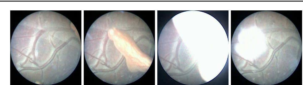 Figure 1 for Retrieval and Registration of Long-Range Overlapping Frames for Scalable Mosaicking of In Vivo Fetoscopy