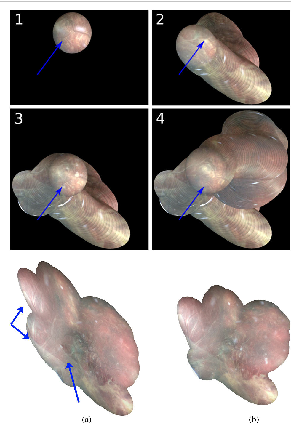 Figure 4 for Retrieval and Registration of Long-Range Overlapping Frames for Scalable Mosaicking of In Vivo Fetoscopy