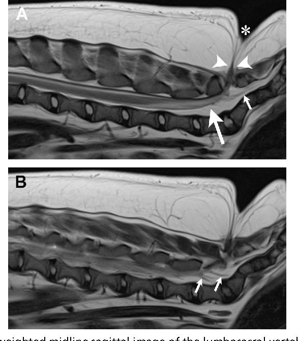 Figure 16 from Spina Bifida, Meningomyelocele, and Meningocele