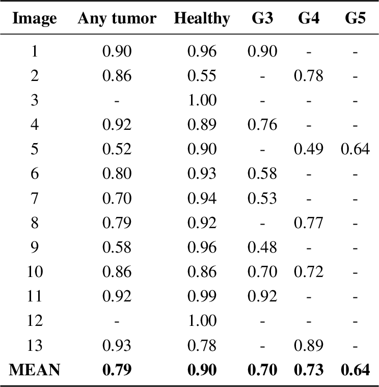 Figure 3 for High Accuracy Tumor Diagnoses and Benchmarking of Hematoxylin and Eosin Stained Prostate Core Biopsy Images Generated by Explainable Deep Neural Networks