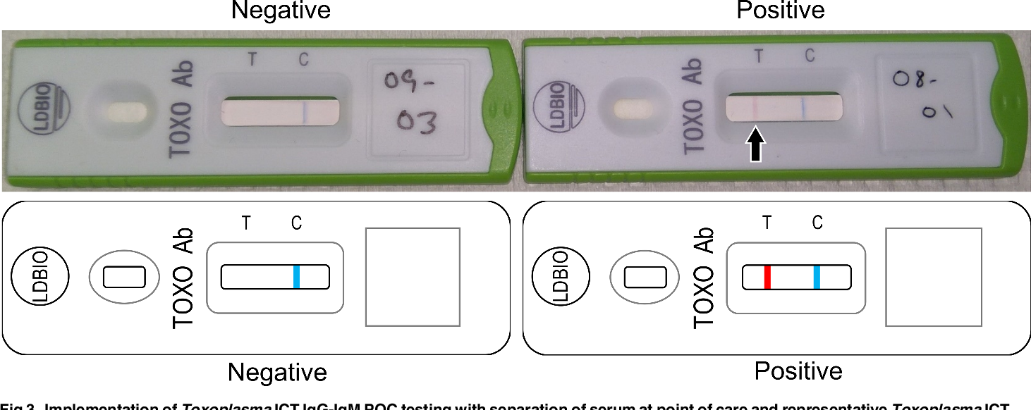 Figure 3 from Point-of-care testing for Toxoplasma gondii IgG/IgM