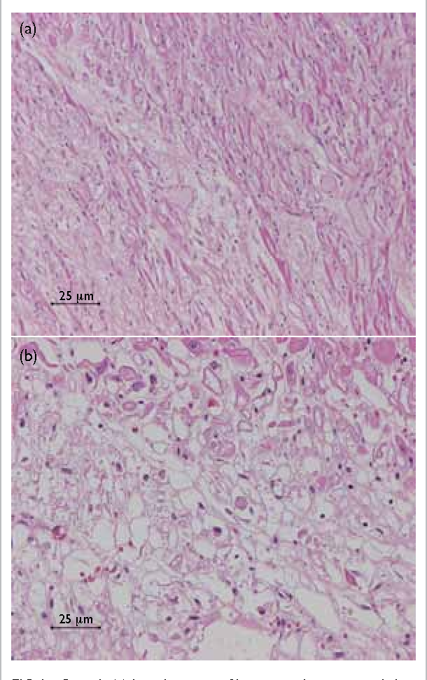 FIG 2. Case 1: (a) lymphocytic infiltrates within myocardial fibres (H&E; original magnification, x 200); (b) extensive myocardial necrosis (H&E; original magnification, x 400)